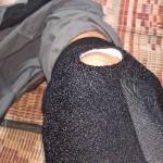 Frisch bandagiertest Knie